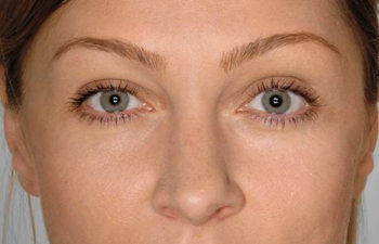 Face of Woman After Restylane Injections