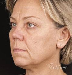 Rejuvenation with Restylane Fillers