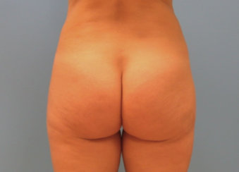 Buttock Correction of Dimples and Cellulite