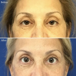 FaceLift and Upper Eyelid Surgery