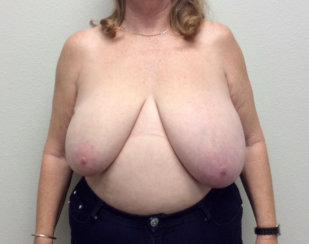 Breast Reduction, Breast Reconstruction