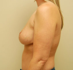 Breast Implants Removal and Breast Lift