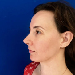 Minimally Invasive Midface Suspension (MIMS) and Fat Transfer to Face