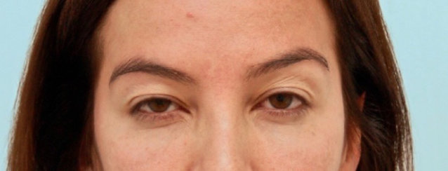 Endoscopic Brow Lift & Forehead Lift