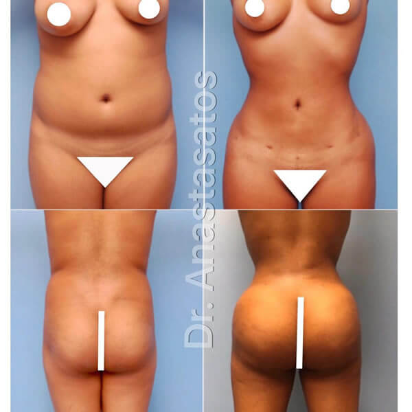 Photos of a young woman's body before and after liposuction