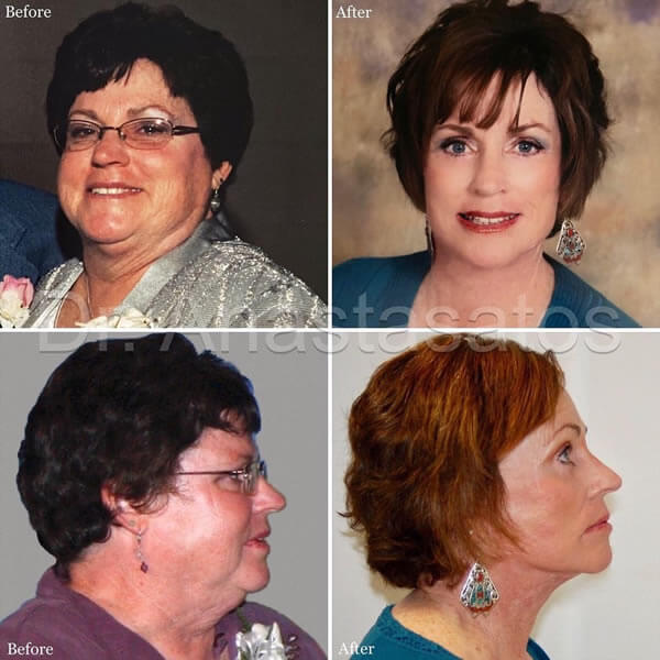 Photos of a mature woman before and after facelift