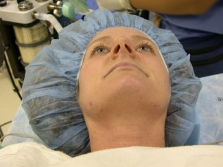 Nose Re-Shaping Surgery, Rhinoplasty and Septoplasty