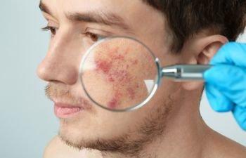 Acne Treatment Los Angeles CA