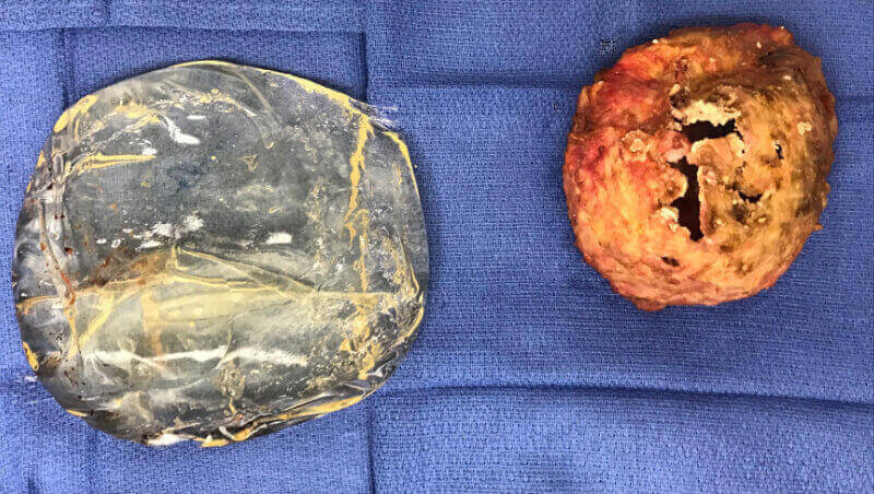 Severe capsular contracture & ruptured silicone breast implants